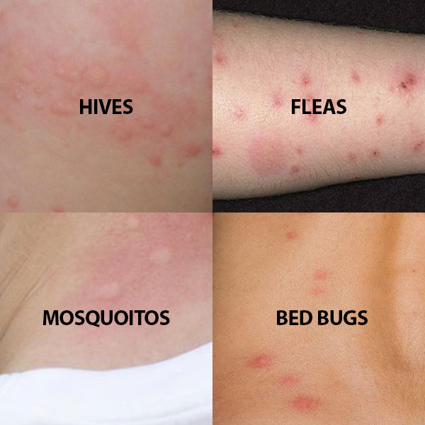 How Can U Get Rid Of Bed Bug Bites